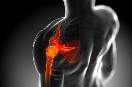 Pinzamiento Subacrominal y Disfunción Muscular Escapular - Liliana Rozo