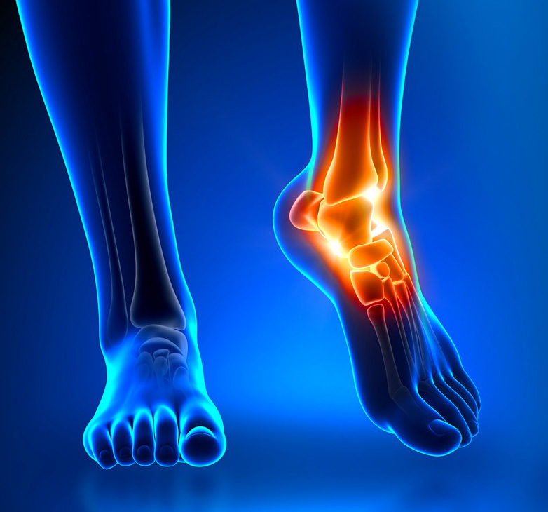 Featured-Image-Sprain-Ankle